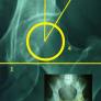 Εικόνα 1: (1): η γραμμή που δημιουργείται από τα δύο σημεία του δακρύου (tear drop) και ορίζει τον εγκάρσιο άξονα του ασθενή, (2): η γραμμή που ξεκινά από το κέντρο της μηριαίας κεφαλής και ορίζει τον οβελιαίο άξονα, (3): η γραμμή που ξεκινά από το κέντρο της μηριαίας κεφαλής και καταλήγει το έξω σημείο της οροφής της κοτύλης, (4): ο κύκλος που το κέντρο του αντιστοιχεί το κέντρο της μηριαίας κεφαλής.